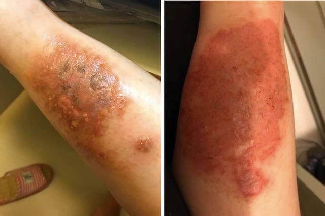 病發時小腿潰爛、流膿,狀甚恐怖